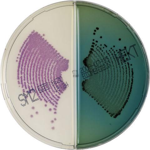 Image chromID Salmonella / Hektoen