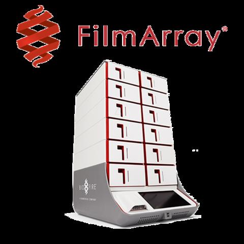 FilmArray Torch